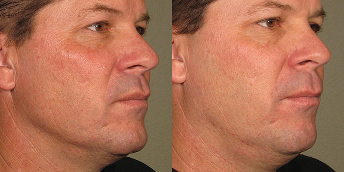 ultherapy-before-after-2