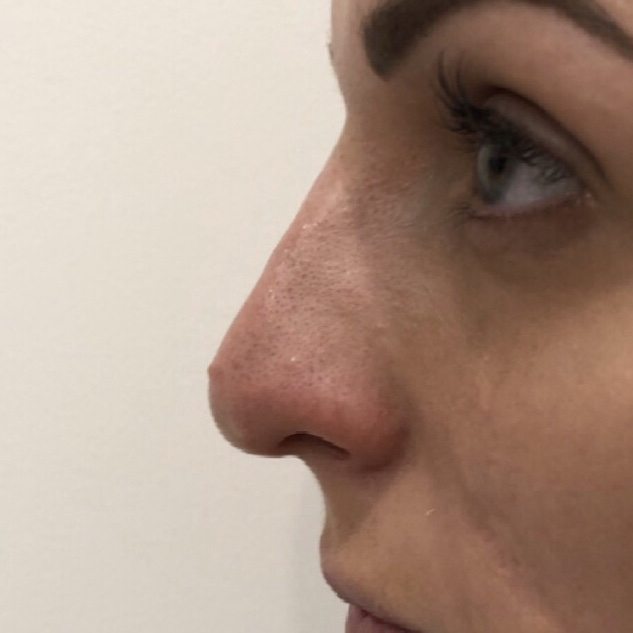 Nose filler treatment by Dr Mitch