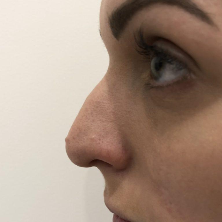 Before - Nose filler