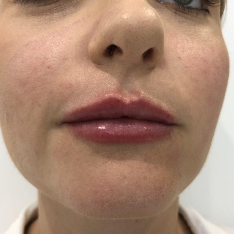 After - Lip filler