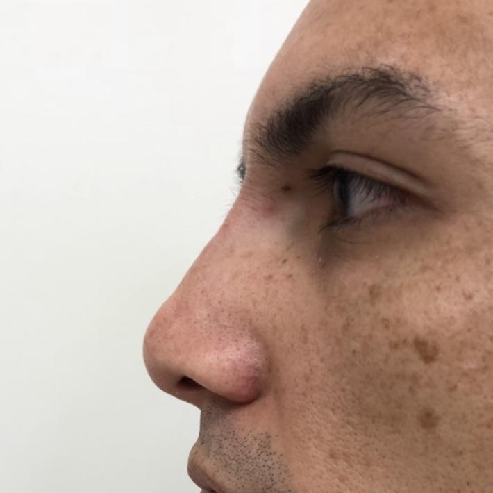 After - Nose filler