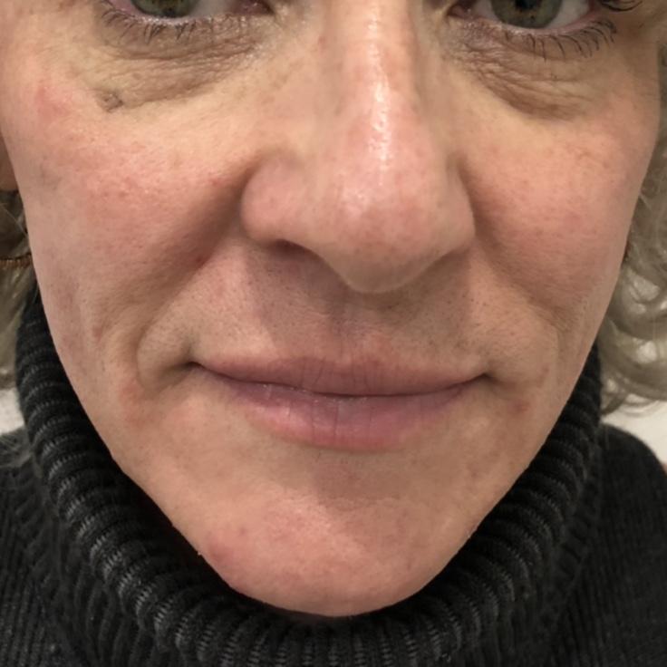 After - Midface filler