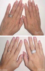 Biostiumlator filler hand treatment by Marian