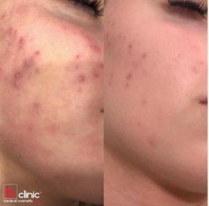 Carbon laser facial treatment post 1 treatment