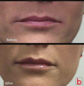 Dermal Filler lip refresher treatment by Dr Lee