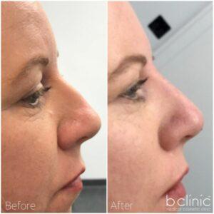 Dermal Filler nose treatment by Dr Luke