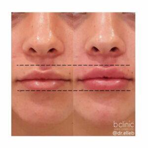Dermal filler lip enhancement by Dr Elle