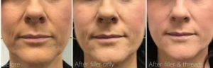Dermal filler and Matrix PDO threads by Dr Lee & Marian RN
