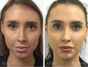 Dermal filler cheek, tear trough and chin enhancement