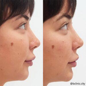 Dermal filler chin enhancement by Dr Elle
