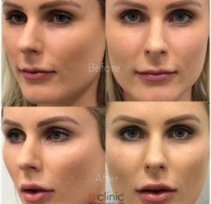 Dermal filler lip and cheek enhancement