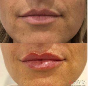 Dermal filler lip ehancement Marian