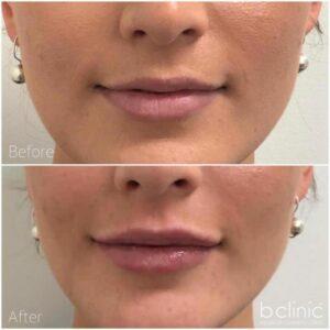 Dermal filler lip enhancement by Dr Ann-Marie