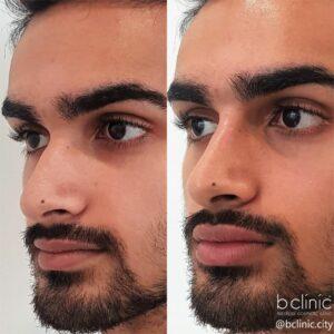 Dermal filler lip & nose enhancement treatment by Dr Elle