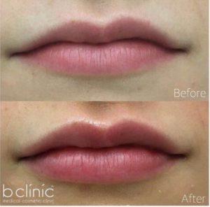 Dermal filler lip enhancement by Dr Mitch