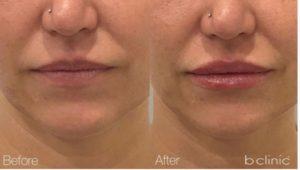 Dermal filler lip enhancement by Marian