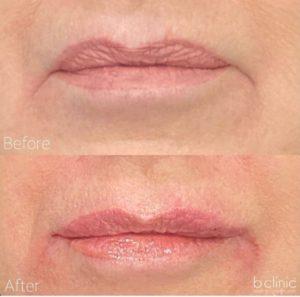 Dermal filler lip refresher and lip corner treatment by Dr Lee