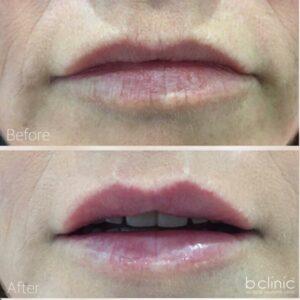 Dermal filler lip refresher treatment by Dr Frank
