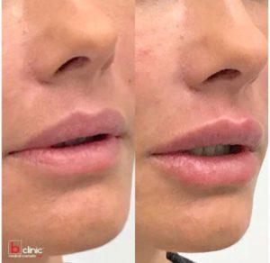 Dermal filler lip enhancement by Dr Lee