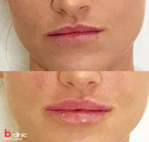 Dermal filler lip enhancement treatment by Dr Lee