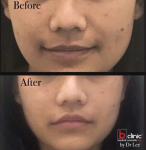 Dermal filler nasolabial fold treatment by Dr Lee