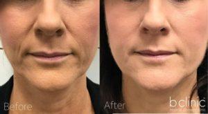 Dermal filler nasolabial folds treatment by Dr Lee