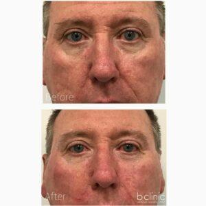 Dermal filler nasolabial folds treatment by Dr Luke