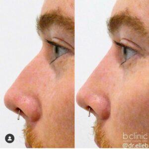 Dermal filler nose enhancement by Dr Elle