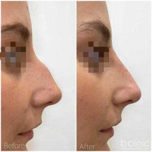Dermal filler nose filler treatment by Dr Frank