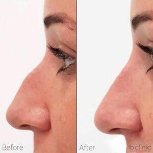 Dermal filler nose treatment by Dr Elle