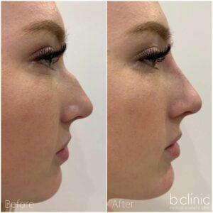 Dermal filler nose treatment by Dr Frank