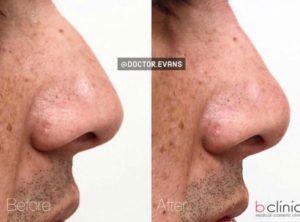 Dermal filler nose treatment by Dr Mitch