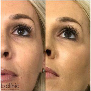 Dermal filler tear trough and cheek treatment by Dr Lee
