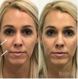 Dermal filler tear trough & nasolabial fold treatment by Dr Lee
