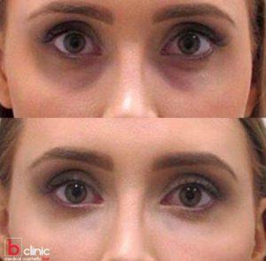 Dermal filler tear trough treatment