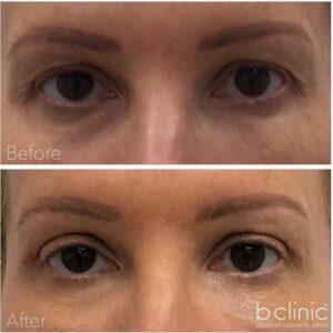 Blepharoplasty eyelid surgery by Dr Lee