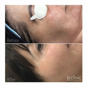 Fractional laser skin resurfacing post 1 treatment by Selina
