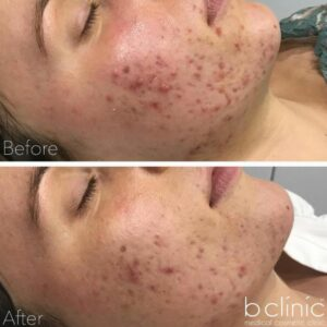 Jessner skin peel post 1 treatment