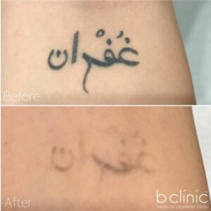 Laser Tattoo Removal post 5 treatments with Jess