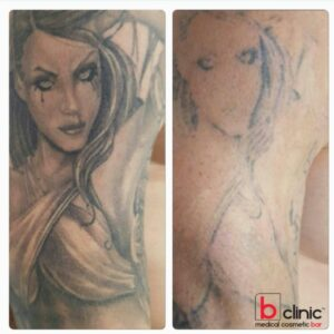 Laser tattoo removal by Jess