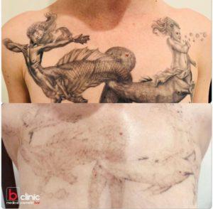 Laser tattoo removal post 1 treatment