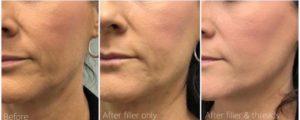Mid-face dermal filler & Matrix PDO thread by Dr Lee & Marian