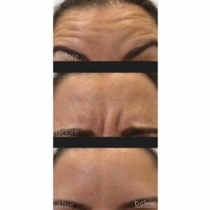 Muscle relaxant frown and horziontal lines treatment by Dr Frank
