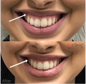 Muscle relaxant gummy smile treatment by Dr Lee