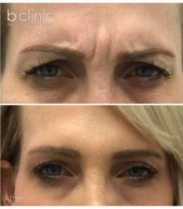 Muscle relaxant brow lift treatment by Dr Lee