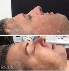 Picosure laser post 1 pigmentation treatment