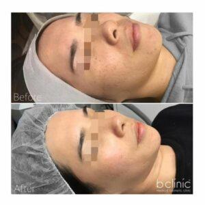 Picosure laser post 2 pigmentation treatments by Chris