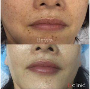 Picosure laser post 2 skin rejuvenation/pigmentation treatments