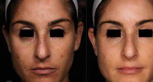 Picosure skin rejuvenation/pigmenation treatment