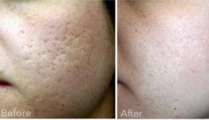 eTwo sublative post 3 acne scarring treatments